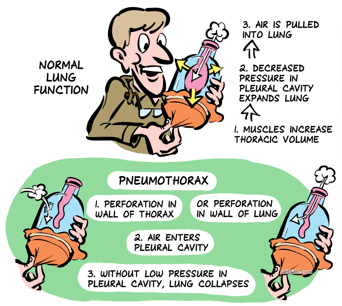 bottle model of lung ventilation and pneumothorax